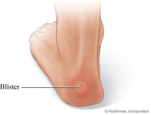 a heel blister
